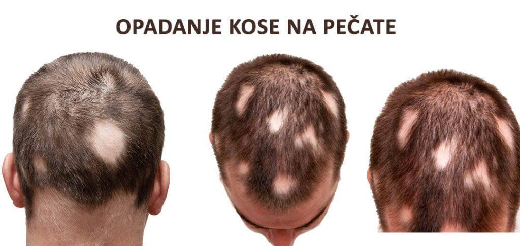 primer opadanja kose na pečate kod muškaraca