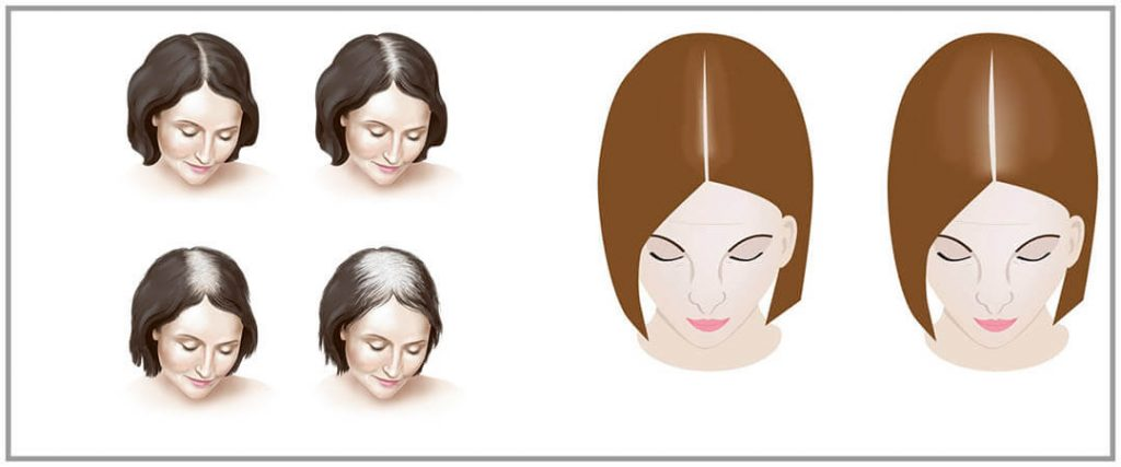 uzroci zasto kosa opada