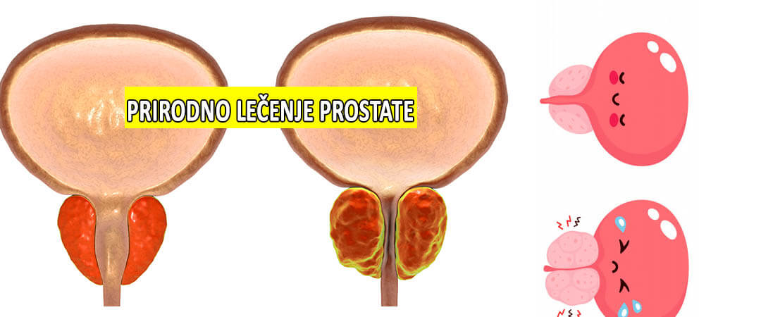 Prirodno lečenje prostate vodom, simptomi i čajevi