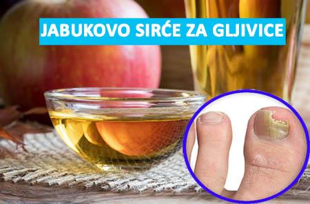 jabukovo sirce za gljivice na noktima