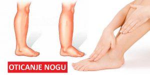 Zašto otiču noge? Prirodni lekovi za oticanje nogu